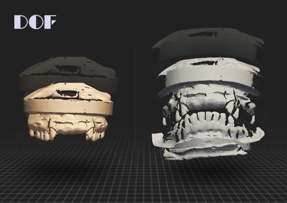 빅데이터 기반  3D 보철물 Data 플랫폼